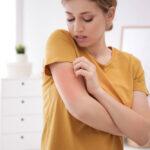 eczema tratamento