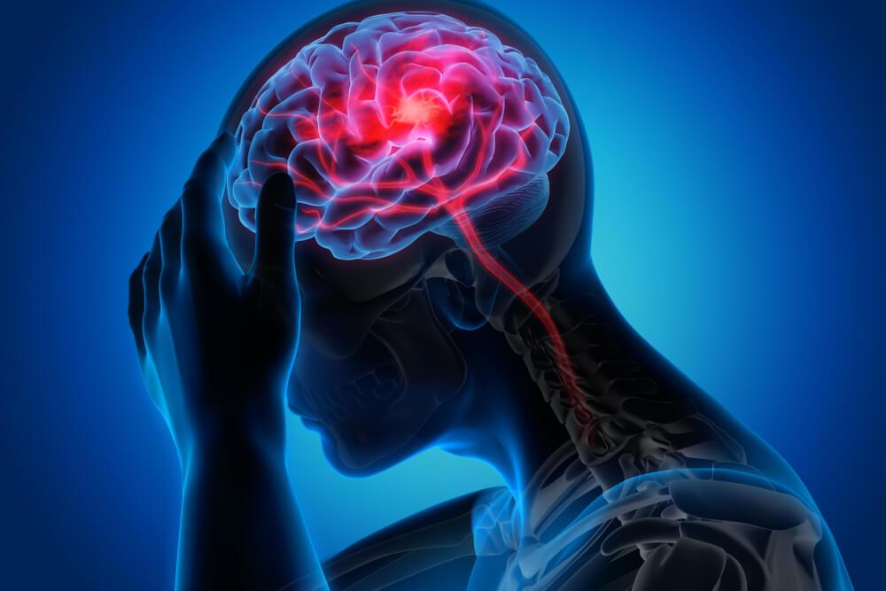 canabidiol para dor de cabeça