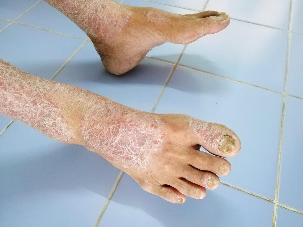 esclerodermia o que pode causar
