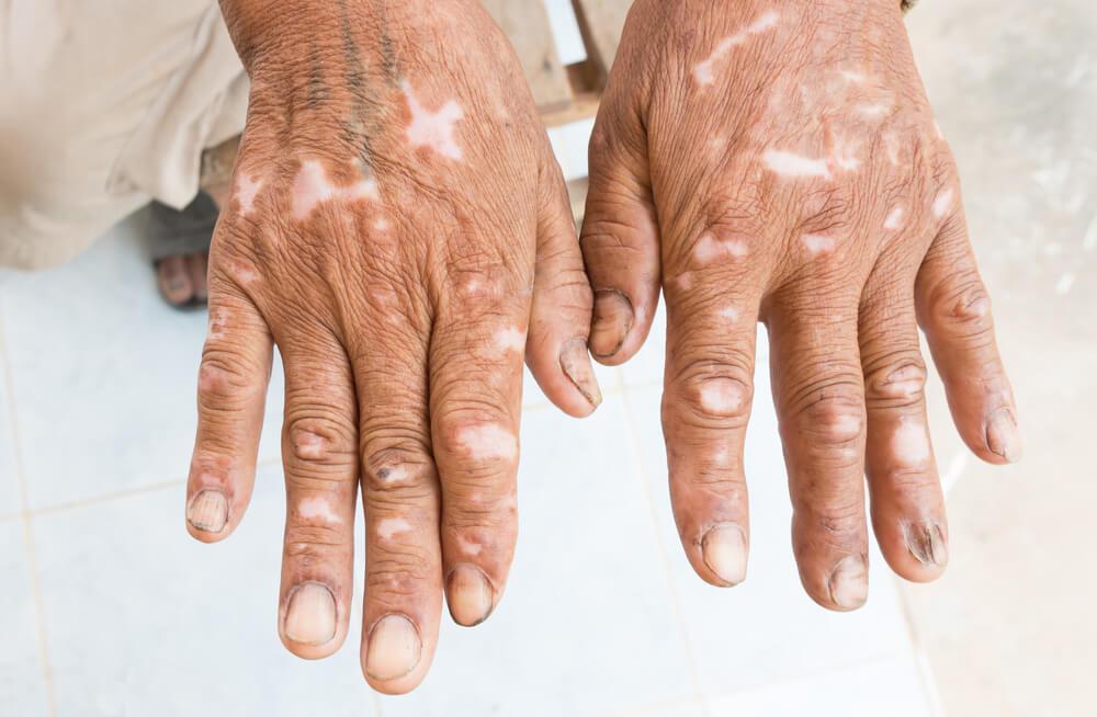 esclerodermia quais são tipos