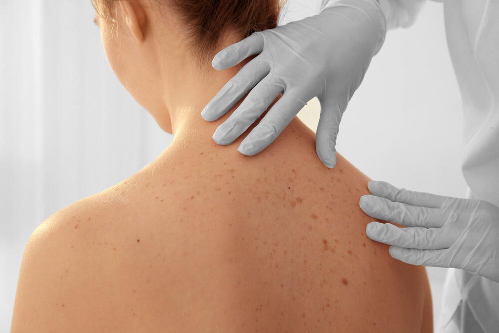 esclerodermia tratamentos disponiveis para