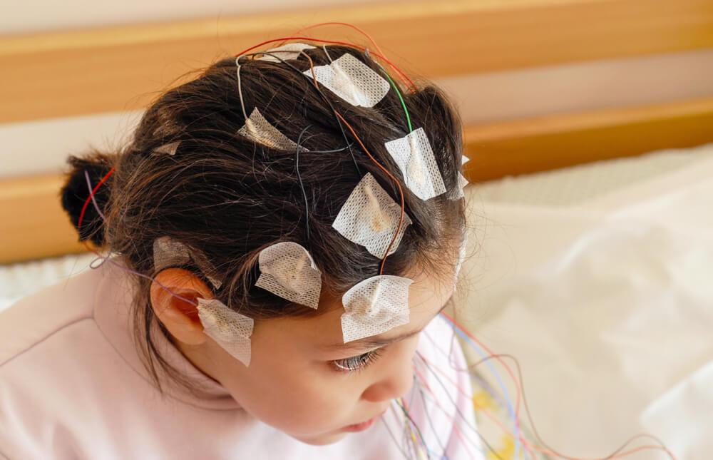 epilepsia refrataria 3 tratamentos disponíveis de difícil controle infância