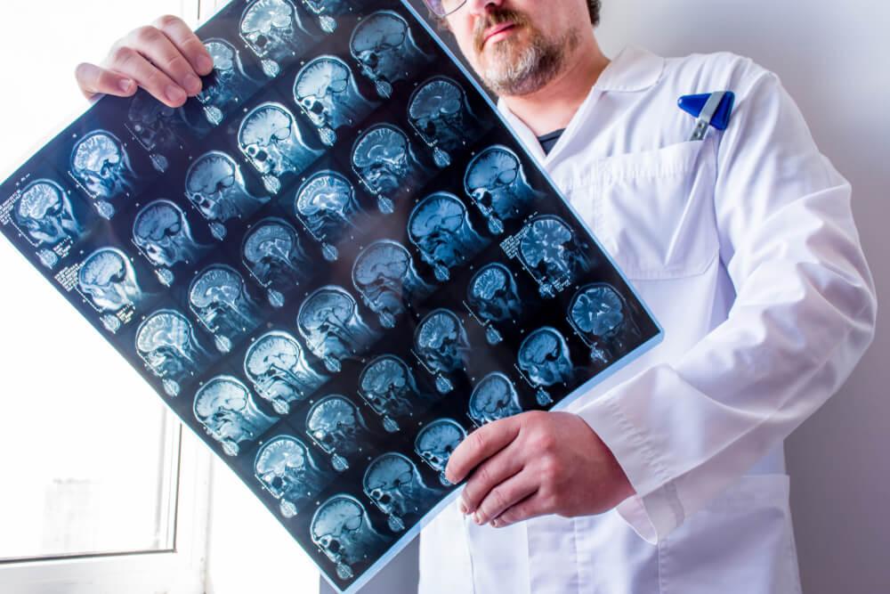 Esclerose Múltipla diagnostico
