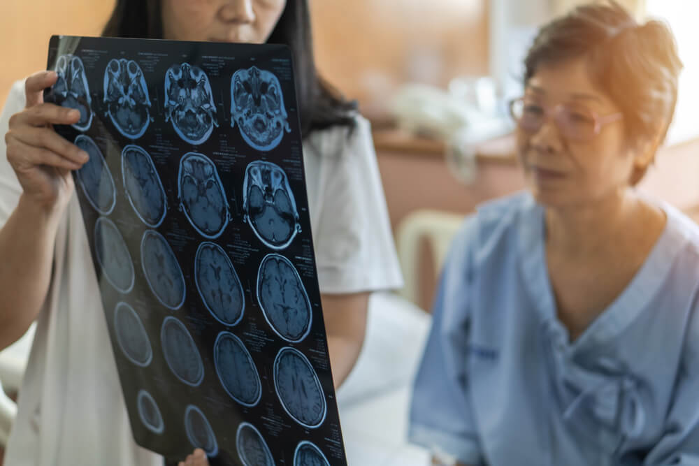 encefalite viral existe cura para