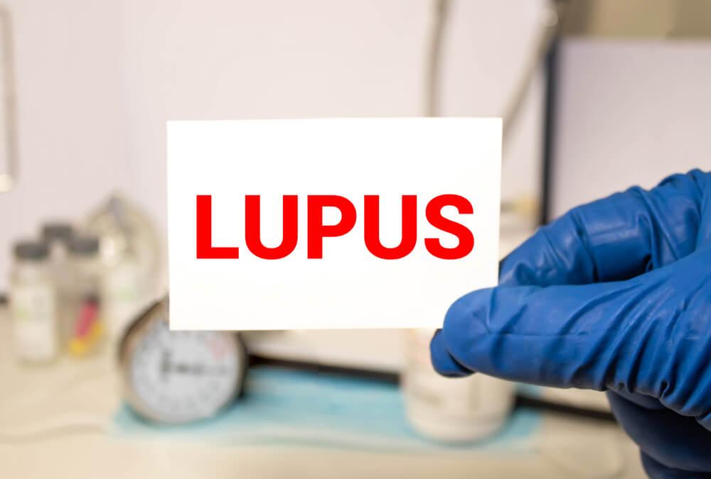 lupus como tratar doenças