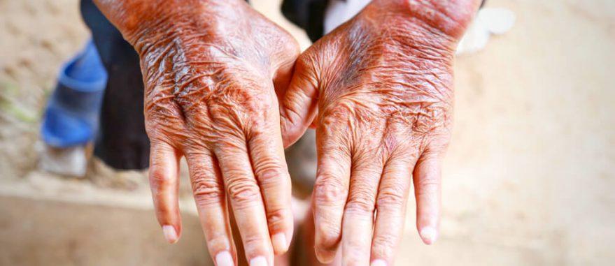 esclerodermia tipos causas sintomas diagnostico