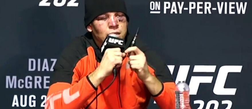 Reprodução. Nate Diaz usa vaporizador de CBD em coletiva de imprensa após luta do UFC