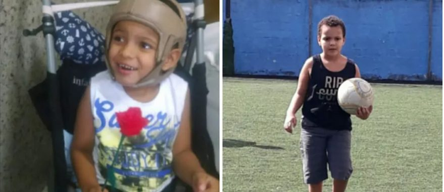 Criança com Síndrome de West deixa cadeira de rodas com canabidiol